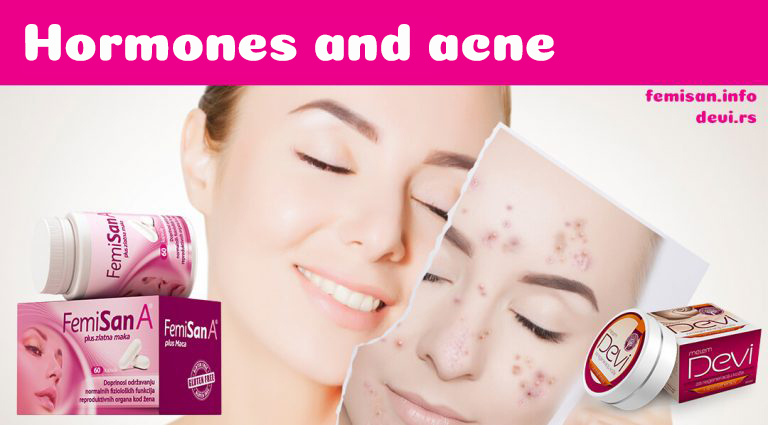 Hormonal Adult Acne